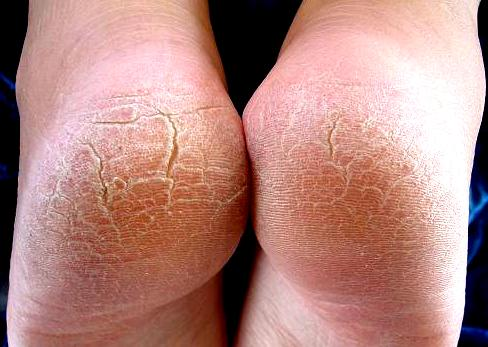 Tumit kaki kering